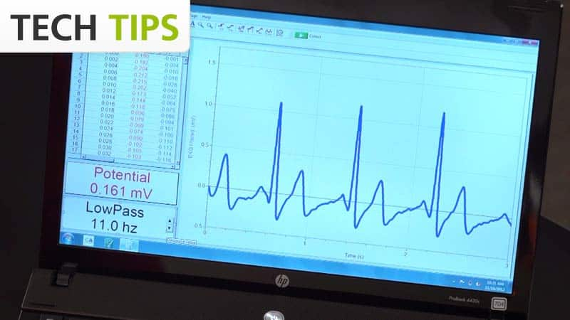 EKG Traces, Advanced Guide - Tech Tips video