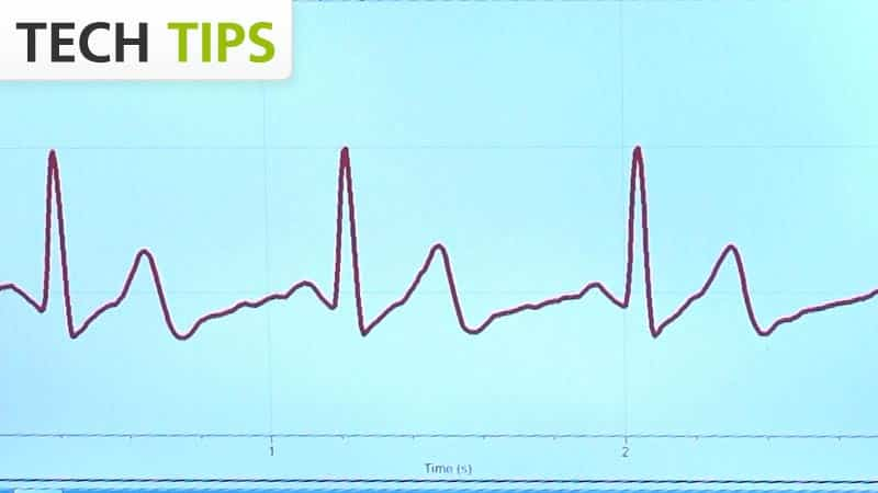EKG Traces - Tech Tips video